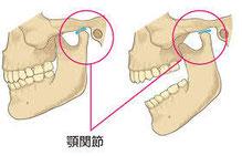 顎関節症の方のまくら