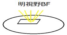 明視野BF