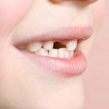 Les poussées dentaires