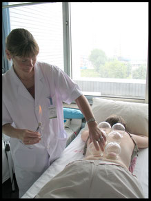Cupping door acupuncturist Marina van Kuilenburg tijdens stage in China