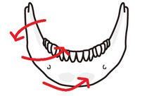 アゴの変形、アゴが開く、歯がズレる、歯が倒れる