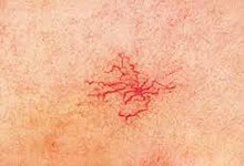 Spinnennävi auf der Haut