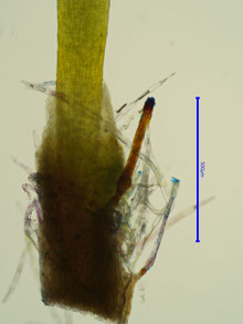 Vaginula des jungen Sporophyten