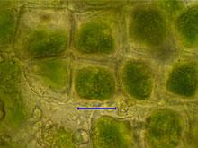 Bild 10 Blattzellen