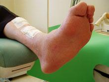 Les chiffres des lésions du pied diabétique