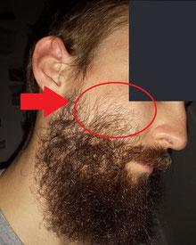por que no sirve el minoxidil para barba