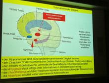 講義でのスライド 精神疾患と脳機能について