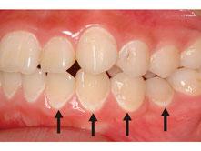 八戸市 歯医者 初期虫歯 予防 ホワイトニング