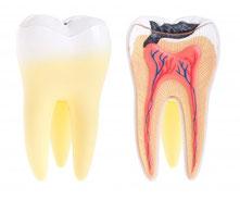 Gesunder Zahn (links) und kariöser Zahn (rechts)