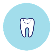 Fuellungstherapie Zahnarzt Ruprecht Ehingen
