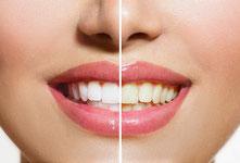 Bleaching Zahnaufhellung Vorher Nachher