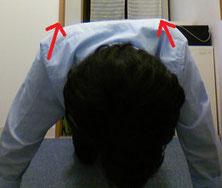 デスクワークで頚椎ヘルニアになった男性