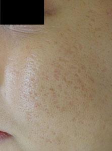 ニキビ跡、クレーター治療、凸凹、アフターの症例写真