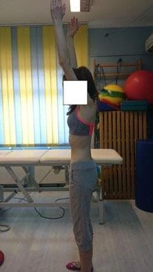 Ćwiczenia korekcji ustawienia miednicy i kręgosłupa, oparte na instruktażu i auto rehabilitacji, wyrównały wadę postawy.