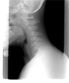 Diagnostyka bólu kręgosłupa - ortopeda RTG (1), Warszawa Bielany, Żoliborz (Kochanowskiego).