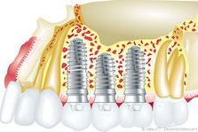 Fester Biss mit Implantaten aus der Zahnarztpraxis
