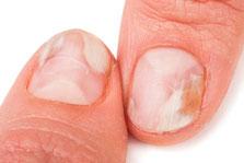 Fußagelpilz oder Nagelpilz Behandeln und Erkennen