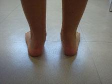 pied plat valgus, pied plat valgus de l'enfant, pied plat de l'enfant