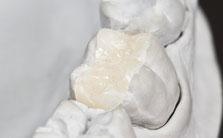 Inlays (Füllungen) aus reiner Keramik
