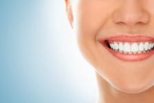 Professionelle Zahnreinigung PZR für gesunde Zähne und festes Zahnfleisch