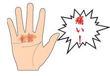 ばね指手術後の指の痛み