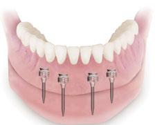 """Damit Sie sagen können"""" Ja ich trage eine Zahnprothese: Merkt aber keiner! """""""