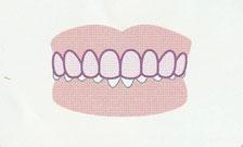 かみ合わせが深い(過蓋咬合)登戸・向ヶ丘遊園にあるカワシマ歯科医院