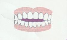 前歯が閉じない(開咬)登戸・向ヶ丘遊園にあるカワシマ歯科医院