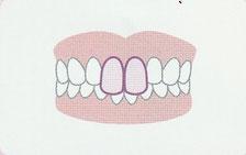 出っ歯(上顎前突)登戸・向ヶ丘遊園にあるカワシマ歯科医院