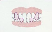 歯が重なっている(叢生)登戸・向ヶ丘遊園にあるカワシマ歯科医院