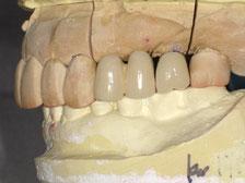 登戸・向ヶ丘遊園にあるカワシマ歯科医院 インプラント