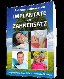 Kostenloser Implantat-Ratgeber für Patienten