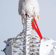 肩コリで首が回らない原因