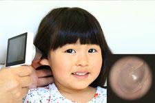 大阪府 堺市 耳鼻科 耳鼻咽喉科 しまだ耳鼻咽喉科 急性中耳炎 中耳炎