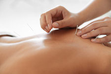 Akupunktur Schmerztherapie
