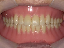 総入れ歯 全部入れ歯