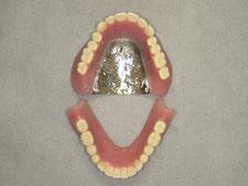 総入れ歯 総義歯 金属床