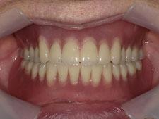 総入れ歯 総義歯