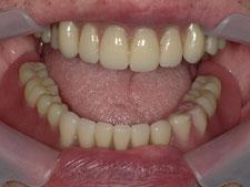 磁石付きの入れ歯