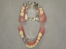 局部床義歯 金属床
