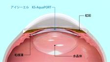 眼内レンズ手術方法4