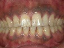 八戸市の歯医者 くぼた歯科医院 タバコ