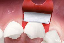 Zahnfleisch Rezessionsdeckung