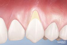 Rezession am Zahnfleisch