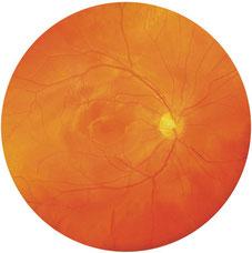 Fundusfoto-gesundes-Auge