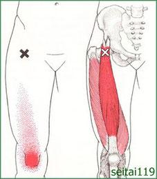 膝痛治療おすすめ