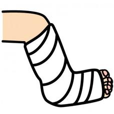 ギブスを巻いた足の画像
