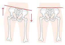 ギックリ・腰痛・尾骨の曲がりはアゴ、首、腕、手首、仙骨、踵から