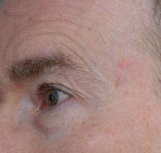 nach Auftragen einer erbsgroßen Menge Serum seitlich und unterm Auge