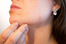 Laserowe usuwanie znamion - lekarz dermatolog podejmuje decyzję.